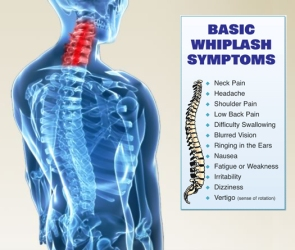 Common Whiplash Symptoms
